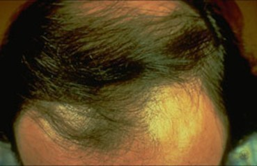 Medical Professionals Who Can Treat Your Hair Loss
