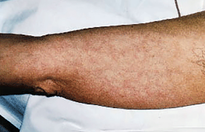 netlike-pattern-on-inner-arm.jpg