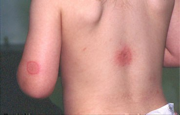 hives-symptoms-mosquitos.jpg