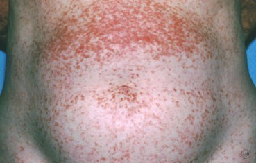 Hives | American Academy of Dermatology