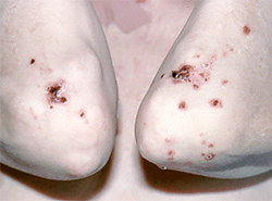 drug-induced-pemphigus-skin.jpg