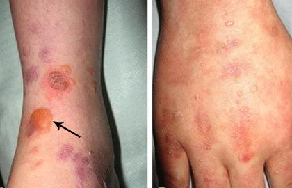 Epidermolysis bullosa   American Academy of Dermatology