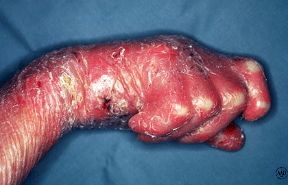 epidermolysis-bullosa-signs-scar-tissue.jpg