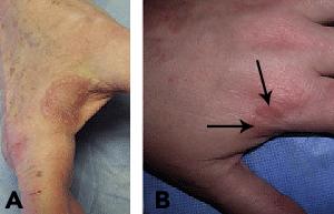 Granuloma annulare   American Academy of Dermatology