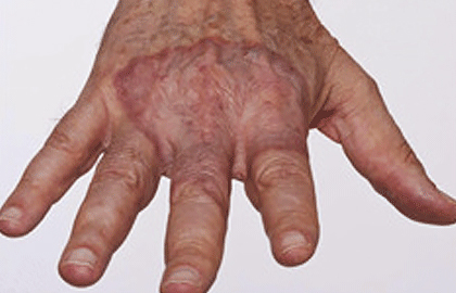 Granuloma annulare | American Academy of Dermatology