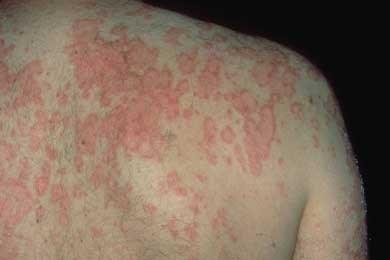 Resultado de imagen de rashes lupus after sun