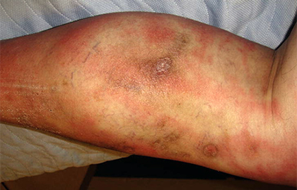 Cellulitis | American Academy of Dermatology