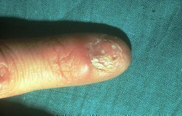 lichen-planus-symptoms_fingernail.jpg
