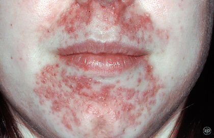 Red rash around your mouth could be perioral dermatitis