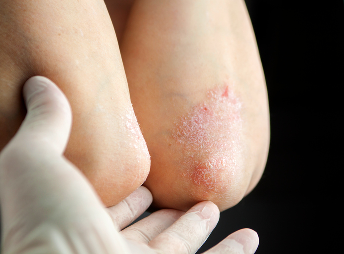 Psoriasis-medication-on-elbow.jpg