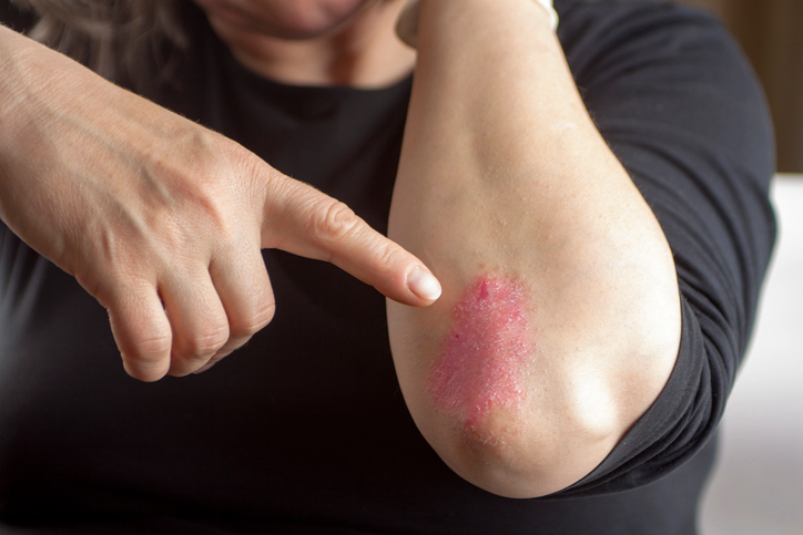 Psoriasis-on-elbow.jpg