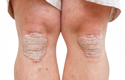 Treating psoriasis may reduce the risk of heart disease, stroke