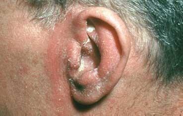 Seborrheic dermatitis | American Academy of Dermatology