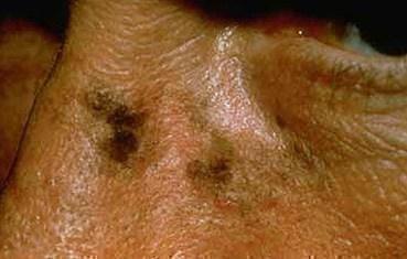 Actinic keratosis   American Academy of Dermatology