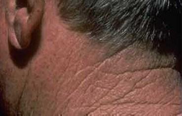 Actinic keratosis | American Academy of Dermatology