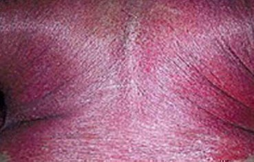 best treatment for psoriasis on elbows