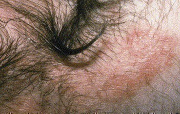 Psoriasis | American Academy of Dermatology