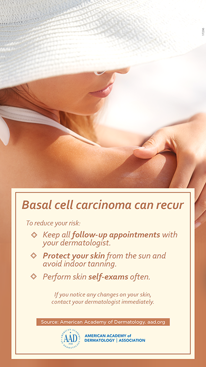 Basal cell carcinoma | American Academy of Dermatology