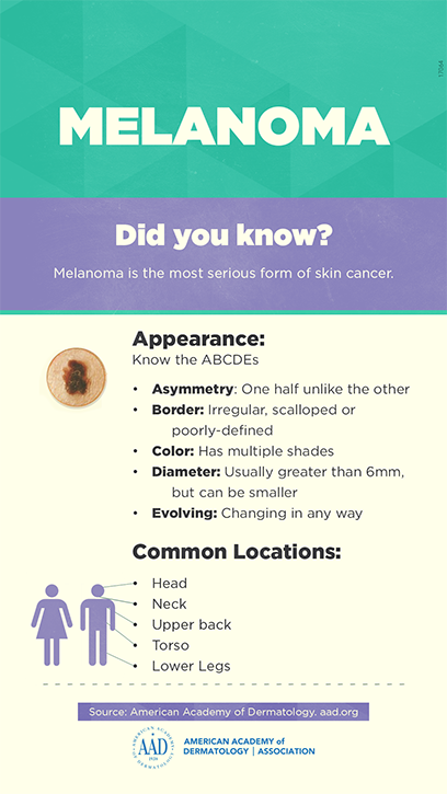 Melanoma---infographic_sm.png