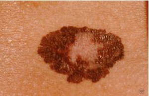 melanoma | american academy of dermatology, Skeleton