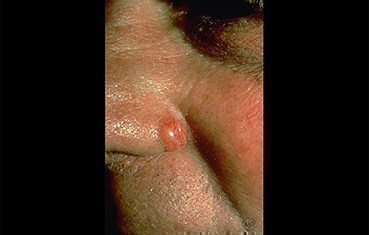 Basal cell carcinoma   American Academy of Dermatology