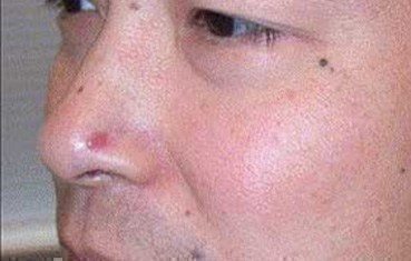 basal cell carcinoma | american academy of dermatology, Human Body