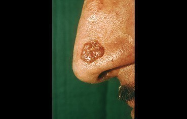 pigmented-basal-cell-carcinoma-slide3.jpg