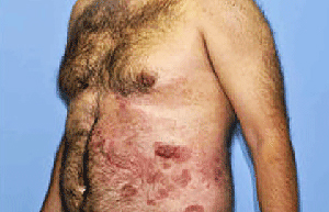 all-three-signs-mycosis-fungoides.jpg