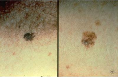 Melanoma | American Academy of Dermatology