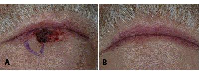 mohs-surgery-lip.jpg