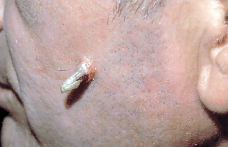 white scaly patch skin cancer