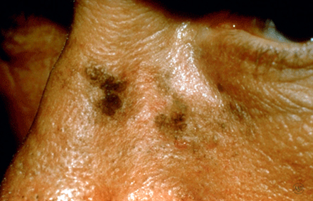 How to spot a precancerous growth on your skin | American Academy of