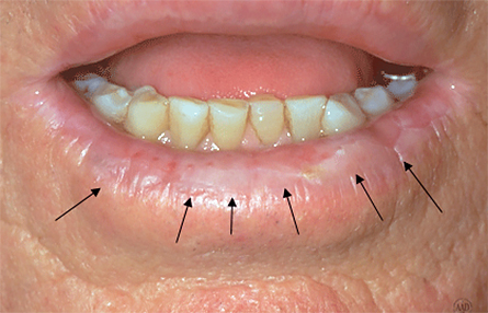 dry patch on lip skin cancer
