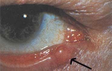 Fig 3 48-50 Extra ocular  ...