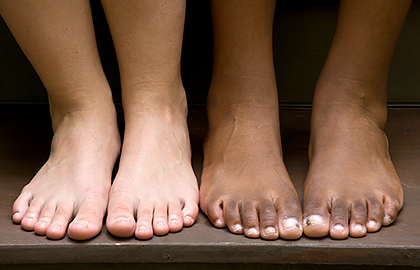 Signs that could be melanoma on your foot | American Academy of