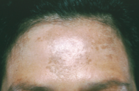Skin cancer in people of color | American Academy of Dermatology | Best image of what does skin cancer look like