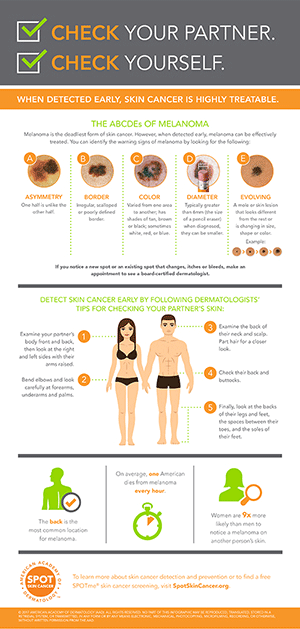 check your partner infographic