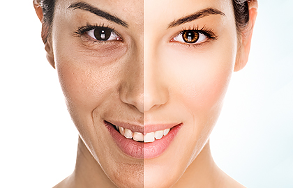 indoor-tanning-split-face-shows-how-tanning-ages-woman.jpg