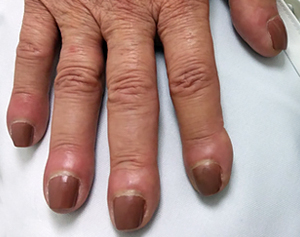 Clubbing Curved Nails Causes
