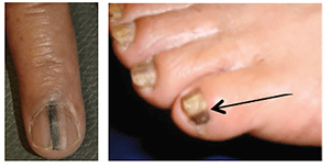 12 nail changes a dermatologist should examine | American Academy of ...