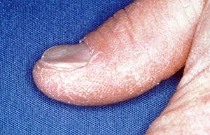 spoon-shaped-nails.jpg
