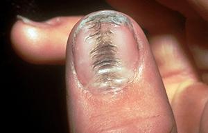 dents in my fingernails