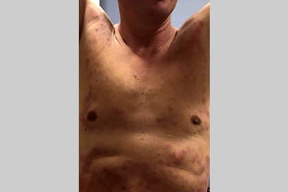 cryotheraphy-cold-panniculitis.jpg