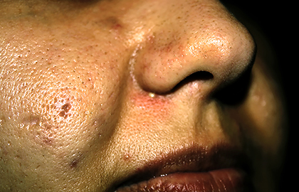 What can treat large facial pores? | American Academy of