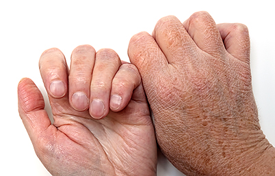 What can make my hands look younger? | American Academy of Dermatology