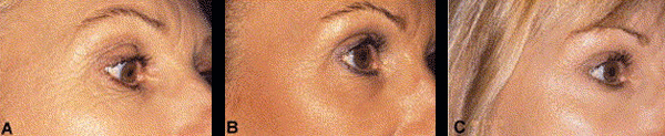 sun-damaged-skin-before-after-treatment.jpg