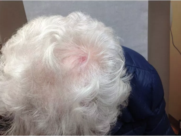 Erosive pustular dermatosis following topical therapy