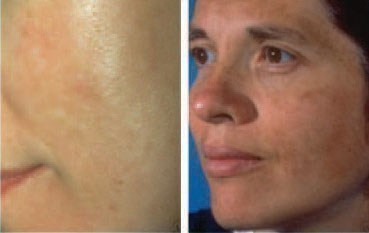 Women who have melasma