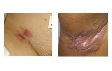 hidradenitis suppurativa groin pictures #10