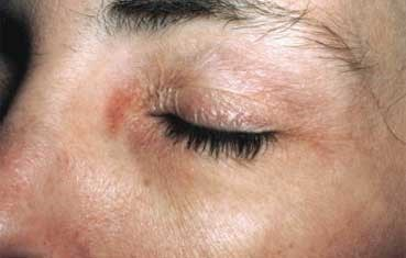 Contact dermatitis many health care workers develop an allergy to